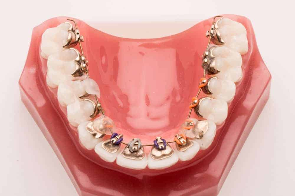Incognito braces on teeth model.