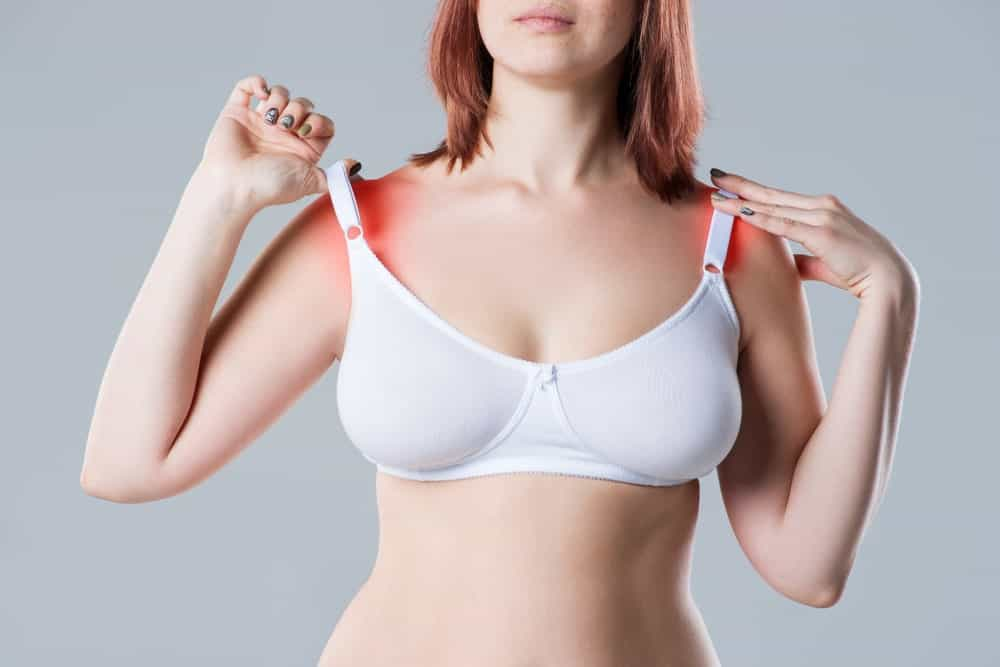 A woman with irritated skin under her bra straps.